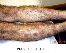 02A-PSORIASIS-BEFORE