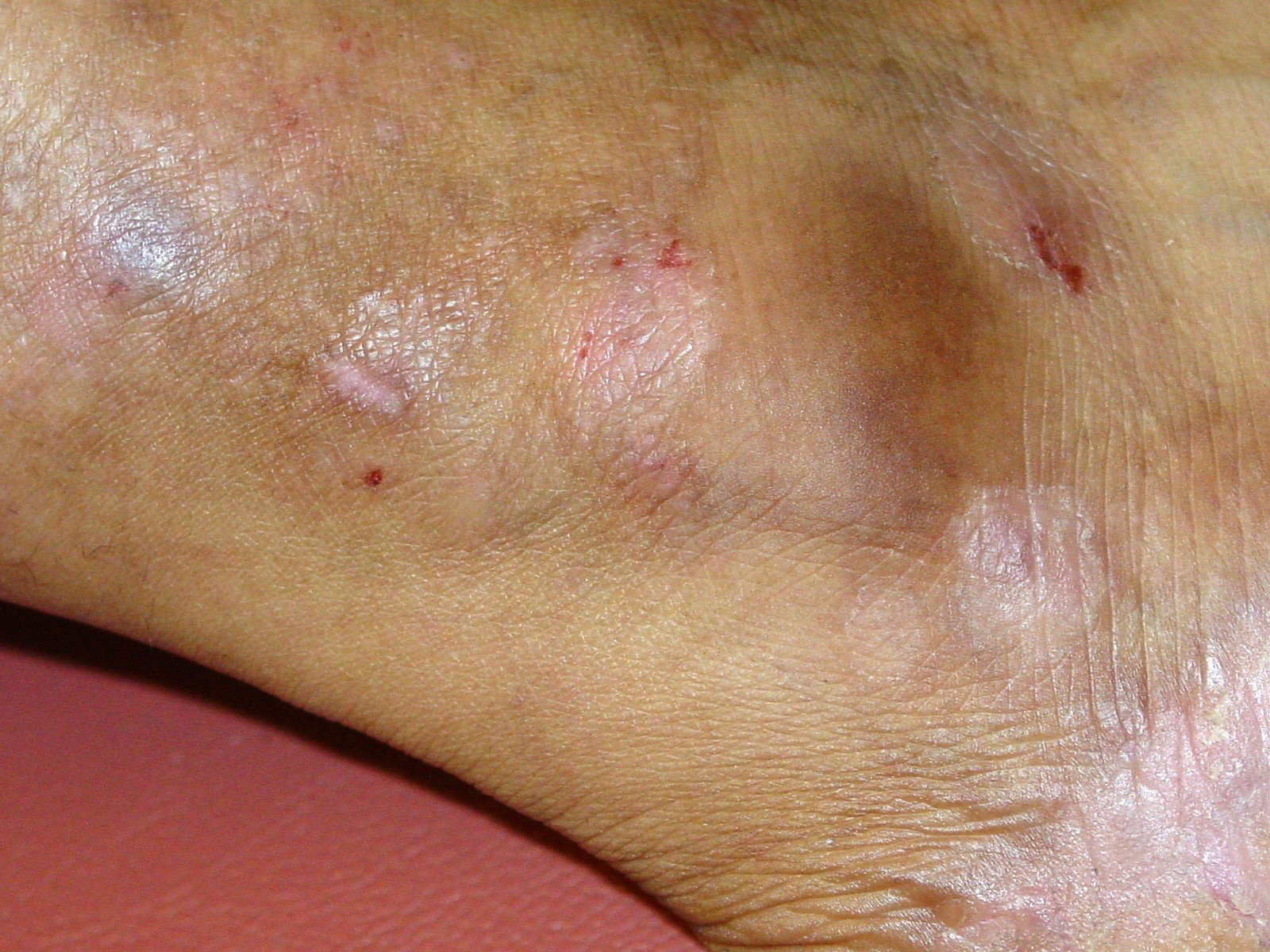 Psoriasis-Leg & Ankle-with 10+ years of allopathic treatment